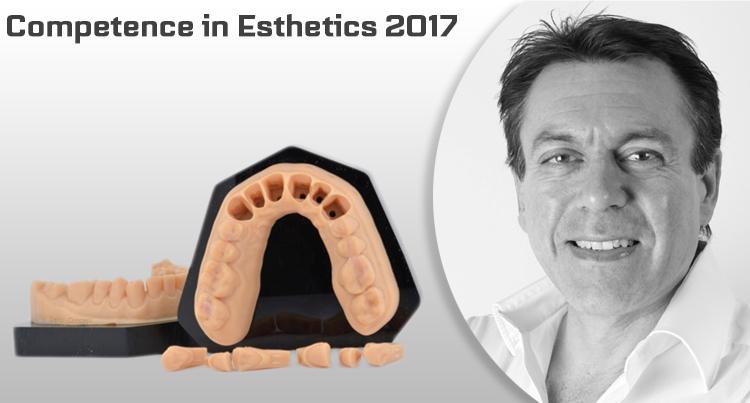 Dental Concept – IPS e.max Press – Multi & Digital
