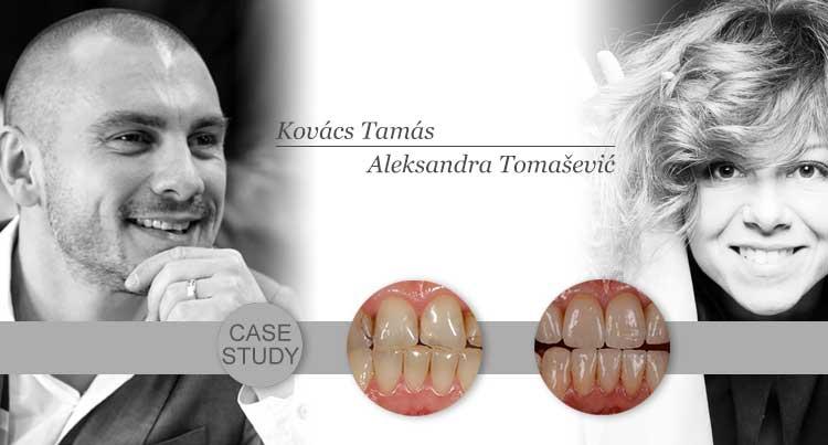 Študija primera Dr Tamás Kovács-a:Funkcionalno-estetska rehabilitacija